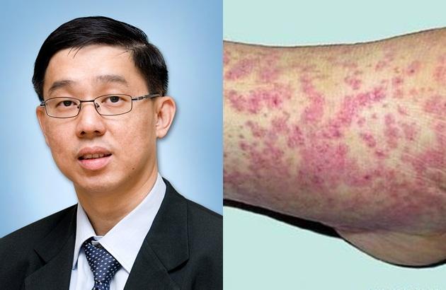 在一些较严重的情况中会演变成水泡,荨麻疹和溃疡,皮肤组织因此会被
